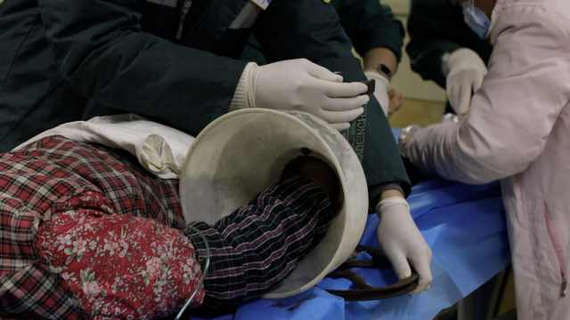 农妇打糍粑绞断手掌,医生5小时接回