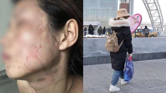 研2女生学校做实验被灼伤,满脸留疤