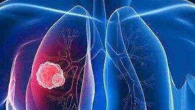 好消息!戒烟后肺能自动修复损伤