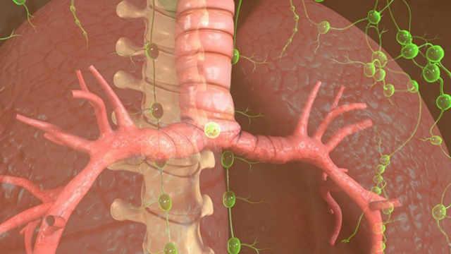 第6节:发生咯血时,如何诊断为支气管类疾病?