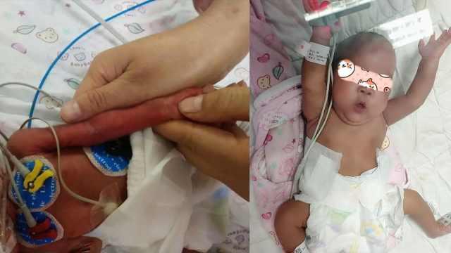 800克早产宝宝胳膊仅有成人拇指粗,救治72天平安