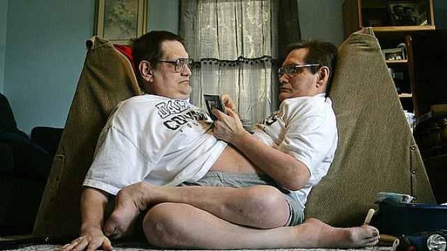 """世界最长寿连体兄弟去世,享年68岁,曾说""""我们的生活很美好"""""""