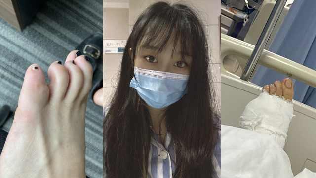 女子称脚趾被咬伤没在意,肿胀两年后竟要切除