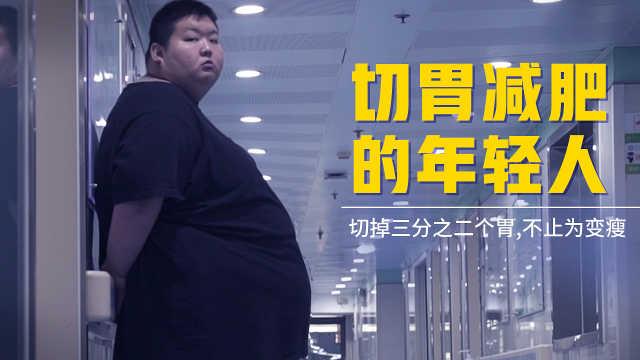 95后男孩胖到500斤,患多种重病危及生命,只能切胃减肥