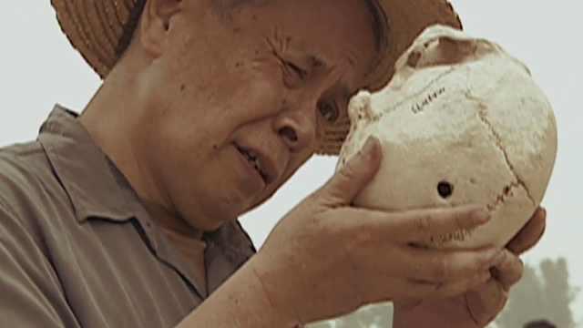 4000年前人类头骨上居然有洞,难道当时就已经有开颅手术了?