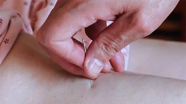 中国古医术——针灸