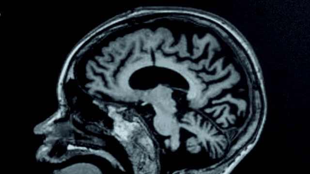 如果大脑能被复制,人类离永生多远