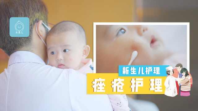新生儿痤疮处理方法和注意事项